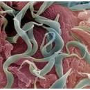 Паразитарные заболевания мочеполовой системы